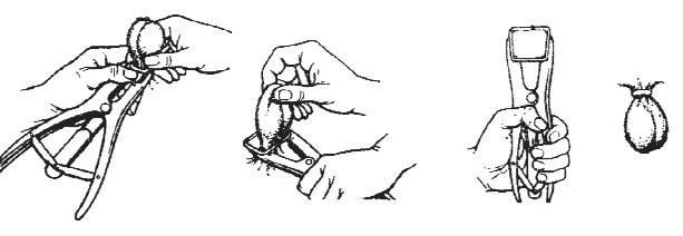 Кастрация как лечение простатита чем заменить таваник при простатите